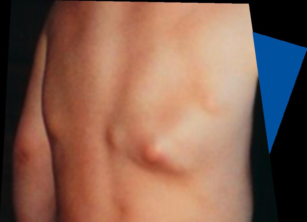 swellings-lumps-bumps