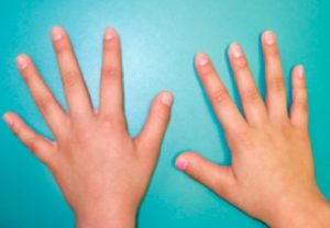short-thumb