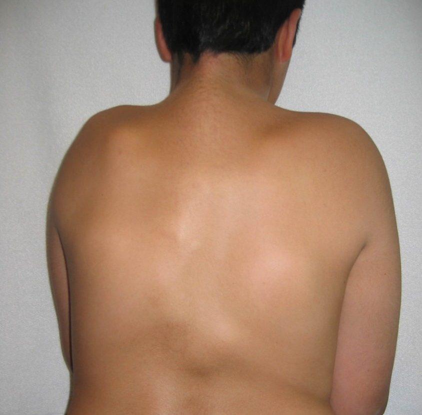swellings-back