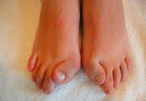 fop-toes