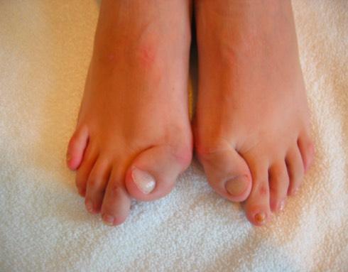 fop toes